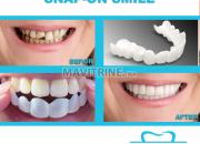 Photo de l'annonce: SNAP ON SMILE